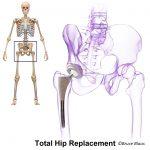 A diagram of a hip implant
