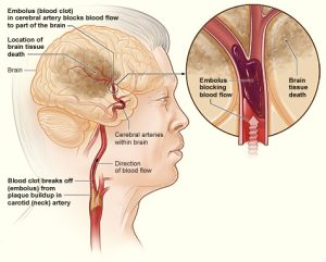A picture showing what happens when a person has a stroke