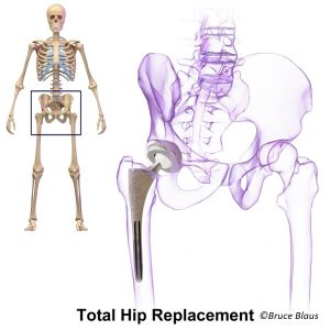 Metal-on-Metal Hip Replacements | Central Health Physiotherapy