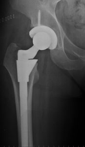 X ray of hip resurfacing