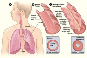 Picture showing what happens to the lungs during an asthma attack