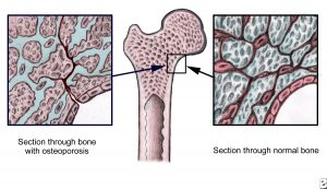 A diagram showing an osteoporotic bone